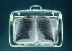 Suitcase X-Ray
